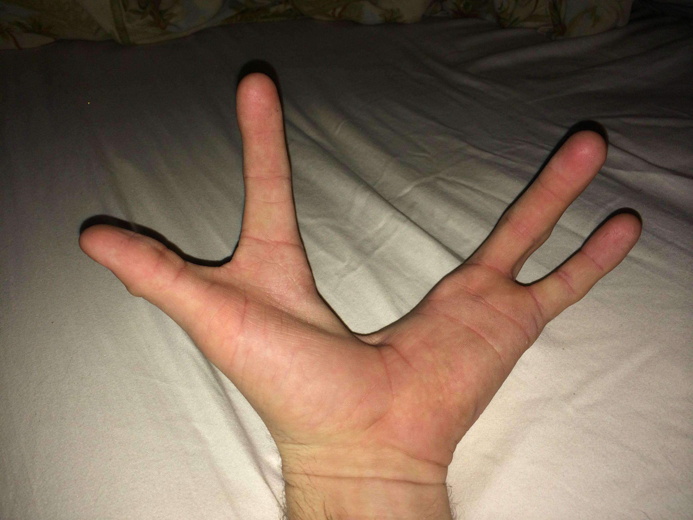 chleni-vmesto-ruk